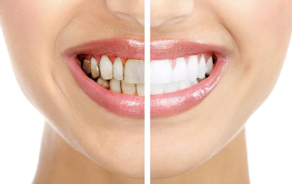 วิธีที่ทำให้ฟันขาวขึ้น