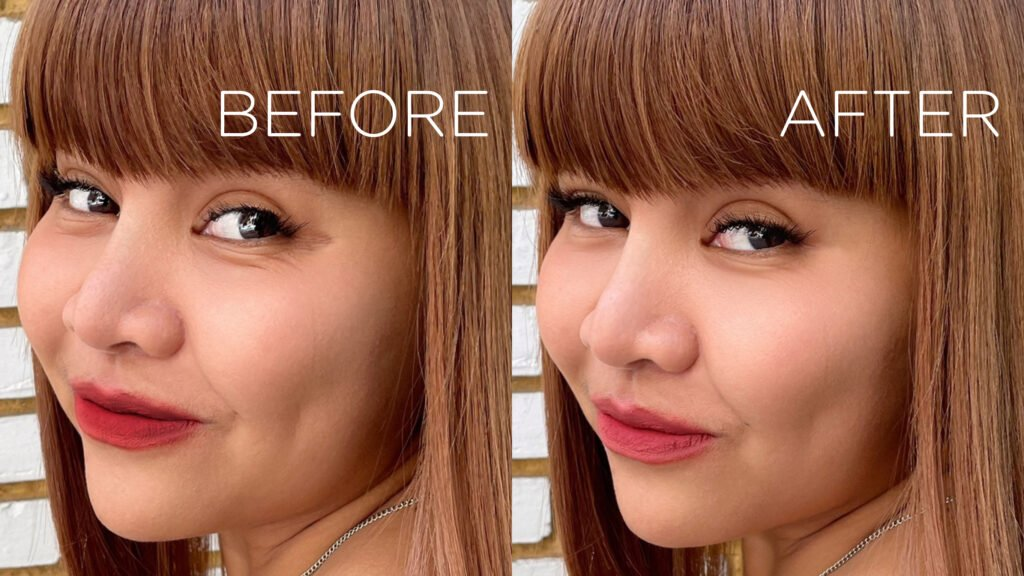 Chercharm Clinic– [REVIEW] รีวิว Botox Wrinkle ฉีดโบท็อกซ์ครั้งแรก จัดการตีนกาอยู่หมัด!