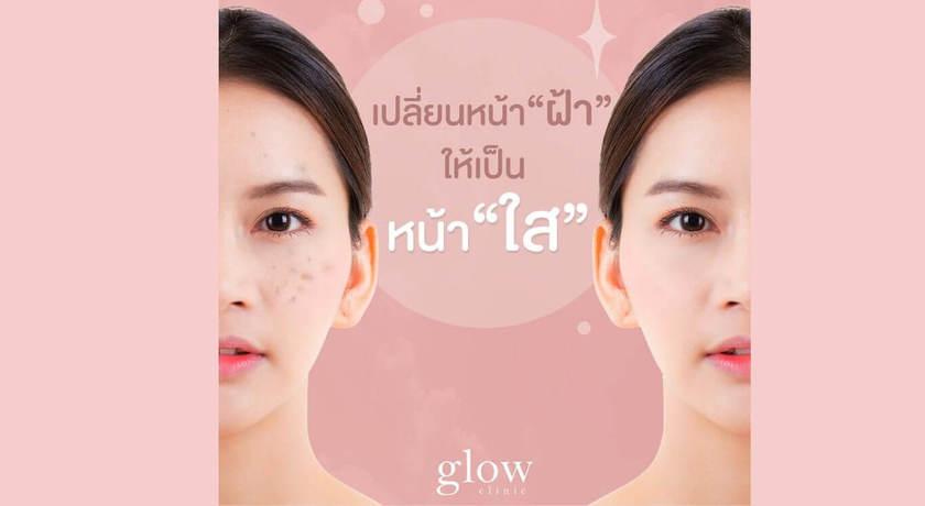 Glow clinic %284%29